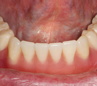 denture-clinical-case2